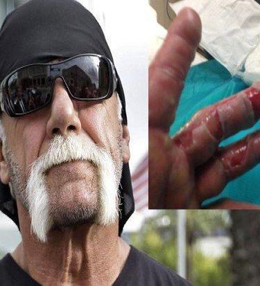 Hulk Hogan burned hand