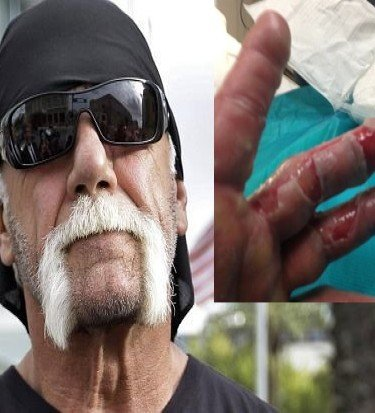 Hulk Hogan burned hand